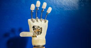 Mano bionica per una donna italiana: è in grado di percepire il contatto