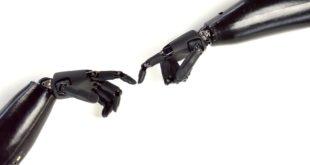 Primo impianto permanente di una mano robotica. L'intervento in Svezia